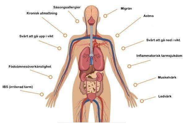 Bilden visar de 10 vanligaste symptomen som en läckande tarm ger.